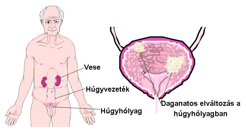 prosztatagyulladás vizelés