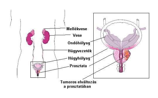 ahol a genitális szemölcsök papillómáját eltávolítják